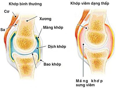 Dùng methotrexat điều trị thấp khớp cho đúng 1